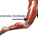 Benderella-Ileotibiale